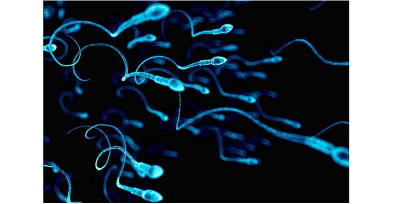 spermatozoid.jpg (73.7 Kb)